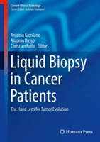 Liquid Biopsy in Cancer Patients: The Hand Lens for Tumor Evolution - The Hand Lens for Tumor Evolution(Pevná vazba)